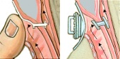 Illustration of a transesophageal puncture