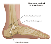 Illustration showing the three ligaments involved in ankle sprains/strains